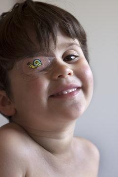 Bambina con benda all'occhio