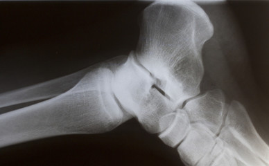 human foot ankle closeup xray