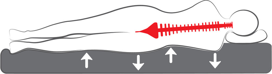 schematic drawing of the orthopedic bed or mattress