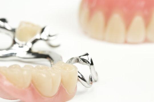 Zahnersatz, Prothesen