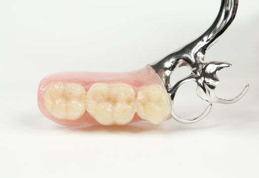 Detail, Klammerprothese, Zähne