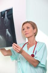Female nurse examining x-ray print
