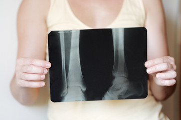 Woman holding an x-ray image