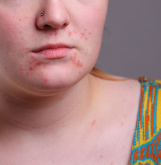 Image of acne on face