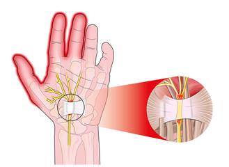 transverse carpal ligament