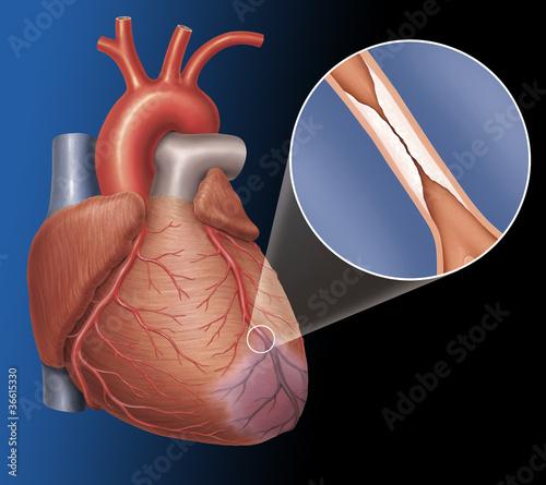 Herz mit Verengung einer Koronararterie\