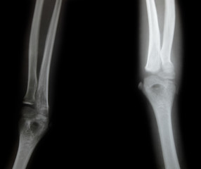 x-ray of a young people arm