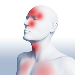 Schnupfen, Fieber, Halsschmerzen und Kopfschmerzen