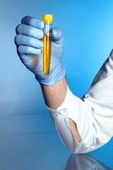 hand of a nurse with a urine sample
