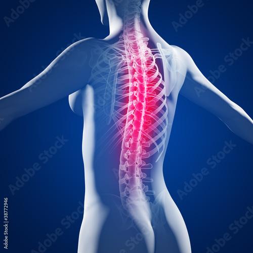 Weiblicher Rücken mit Wirbelsäule\
