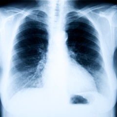 Röntgenbild Brustkorb