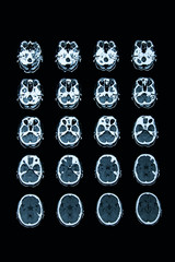 Schädel CT