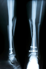 Röntgnbild Fraktur Schien- und Wadenbein mit Stabilisierung