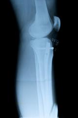 Röntgenbild Fraktur Schien- und Wadenbein