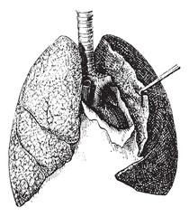 Human Lungs vintage engraving
