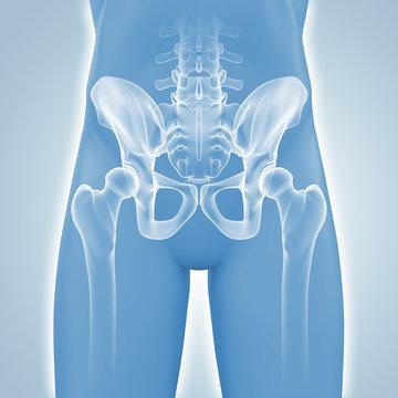 Hüfte - Röntgenbild - 3D Grafik