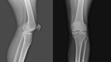 X-ray of both human knee