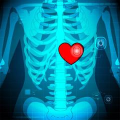 Human X Ray showing Heart