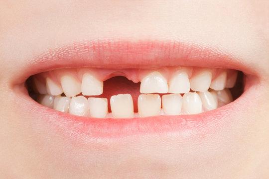 Kind mit Zahnlücke