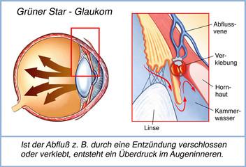 Der grüne Star.Überdruck.Glaukom