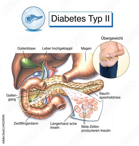 type 1 diabetes essay paper