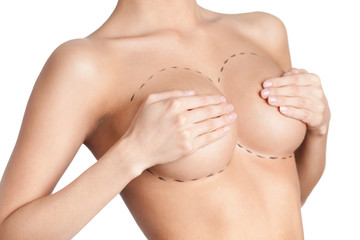 Mammary glands correction, isolated, white background