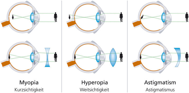 The visual defects Myopia, Hyperopia and Astigmatism and how to correct it with biconcave and biconvex lenses. With glasses or contact lenses. Illustration on white background. Vector.