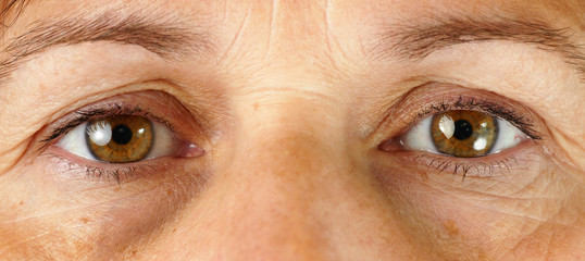 Very tired eyes