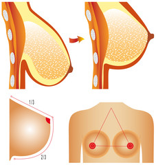 Plastic surgery of breast. Tits correction.