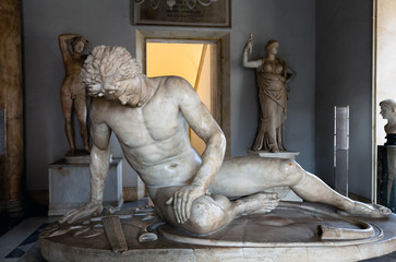 The Dying Gaul, formerly known as the Dying Gladiator