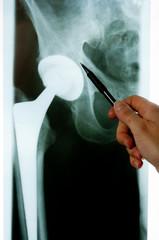 Röntgenbild - Endoprothese
