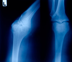 X ray film  of knee fracture