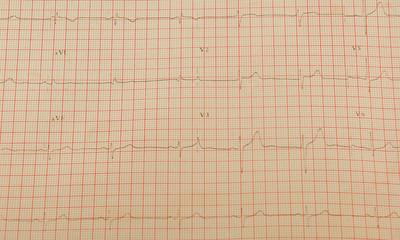 Cardiogram Tape Graph