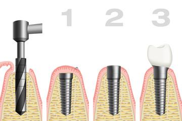 Zahnimplantat / Implantologie
