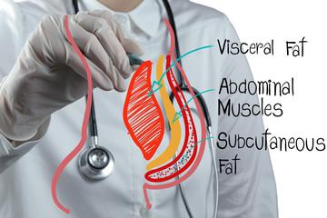 doctor draws abdominal fat