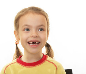 Little girl with no upper teeth.