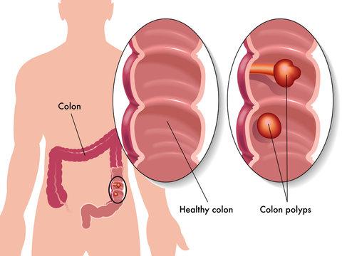 polipo del colon