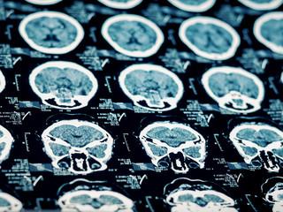 CT scan closeup.Computed tomography of human brain