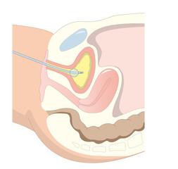 Blasenkatheter Kaiserschnitt
