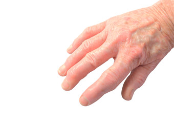 Womans hand showing the deforimity of arthritis isolated