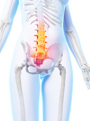 3d rendered illustration of a painful lower spine