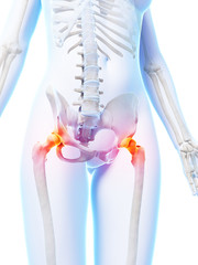 3d rendered illustration of painful hip joints