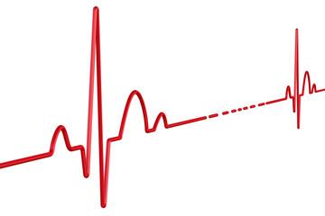 Прерывистая электрокардиограмма