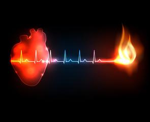 Burning cardiogram