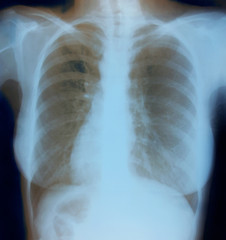 Chest X-ray image of healthy woman