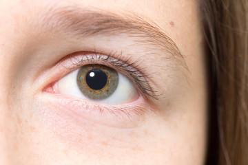 A teenage girls eye