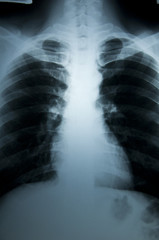 Body scan X-Ray negative film