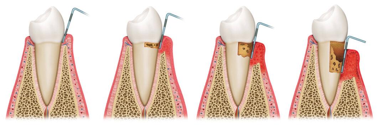 secuencia de gingivitis