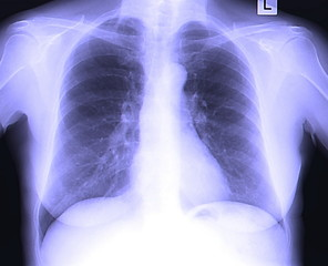 X-Ray Image Of Human Chest