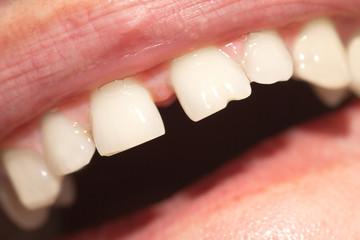 teeth. macro